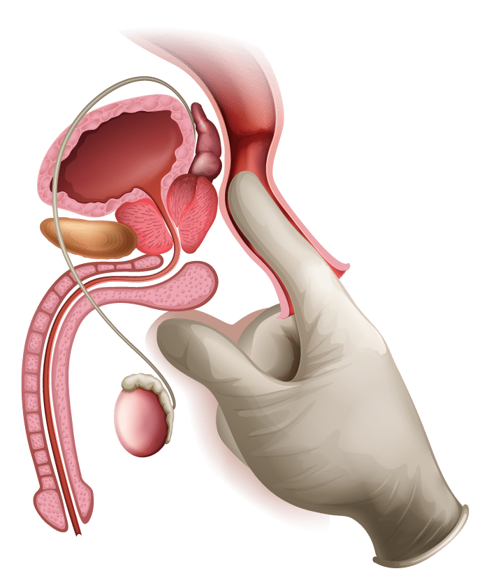 prostate cancer exam